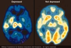 cerebro deprimido